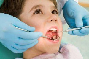 تجميل الأسنان في السعودية - زراعة الأسنان في السعودية - عيادات بنتلي - هوليود سمايل