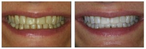 Zoom-whitening-before-after
